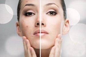 tratamiento-facial-acne